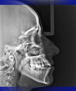 utilizzando questa radiografia si esegue lo studio cefalometrico
